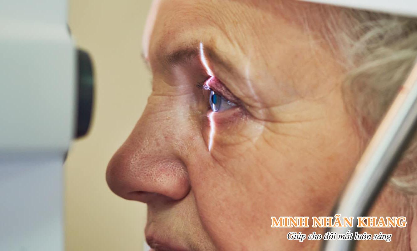Glaucoma là gì? Triệu chứng và cách trị tối ưu, tránh mù lòa
