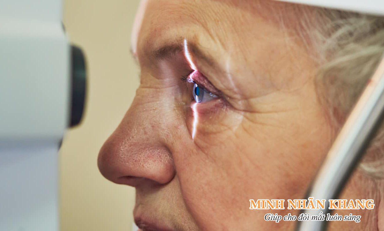 Phương pháp điều trị glaucoma là gì? Dùng thuốc tây và phẫu thuật là 2 phương pháp chính